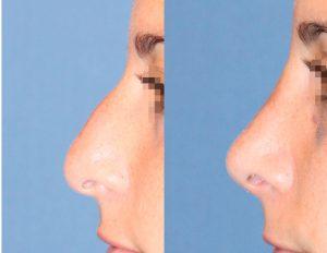Rinoplastia-1-Reseccion-de-giba